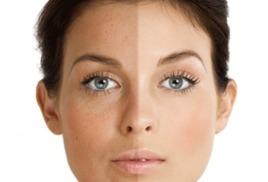 Пилинги - эффективный метод омоложения и восстановления кожи